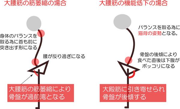 猫背と姿勢の関係