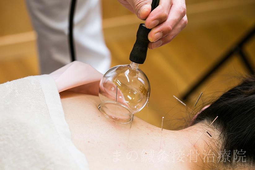 病気への鍼灸治療