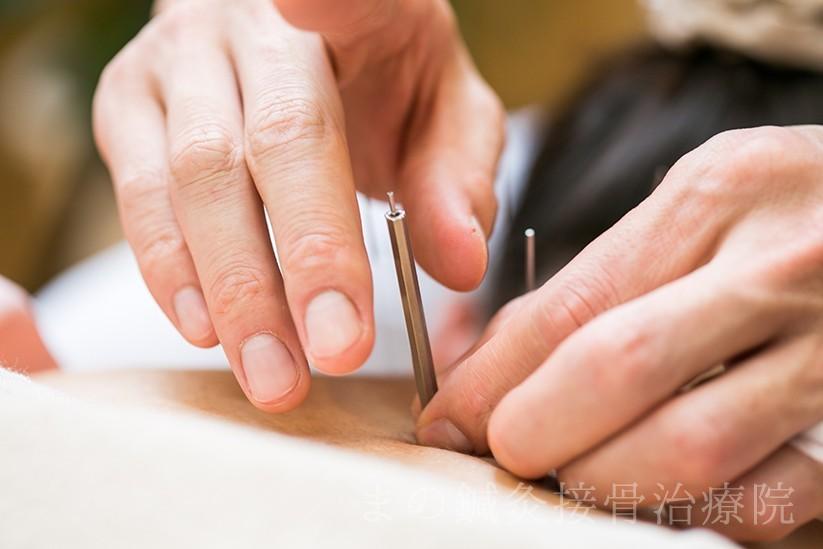 鍼灸による難病治療